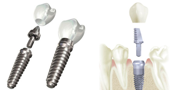 تجهیزات دندانپزشکی اسپانتا