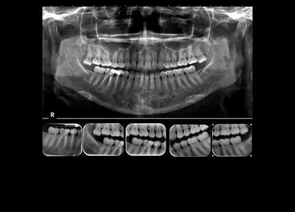 مرکز رادیولوژی دیجیتالی دهان و دندان شاهین